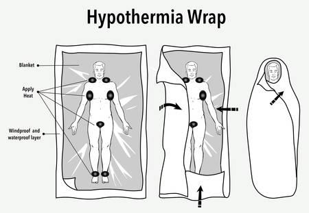 Ilustración vectorial de una envoltura de hipotermia y primeros auxilios. Ilustración de vector