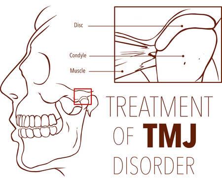 Vektor-Illustration der Behandlung von tmj-Störung