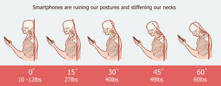 The bad smartphone postures,the angle of bending head related to the pressure on the spine, vector flat cartoon illustration. Man with phone with neck pain isolated on white background stock vector Illustration