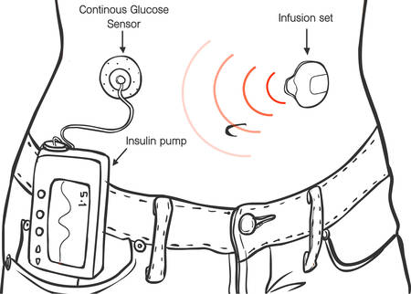 Insulin Pumps for Diabetes Patients Vector Ä°llustration