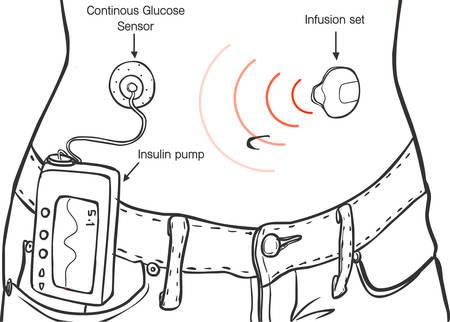 Insulin Pumps for Diabetes Patients Vector Ä°llustration