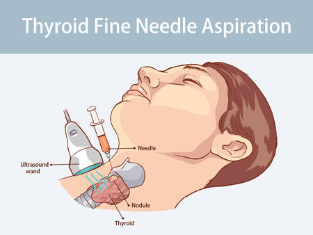 Fine Needle Aspiration of Thyroid Nodules