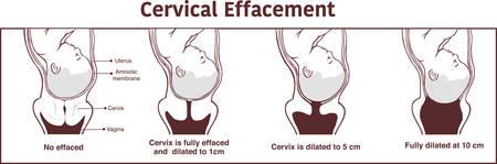 Vector - Cervical effacement and dilatation during labor Vektorové ilustrace