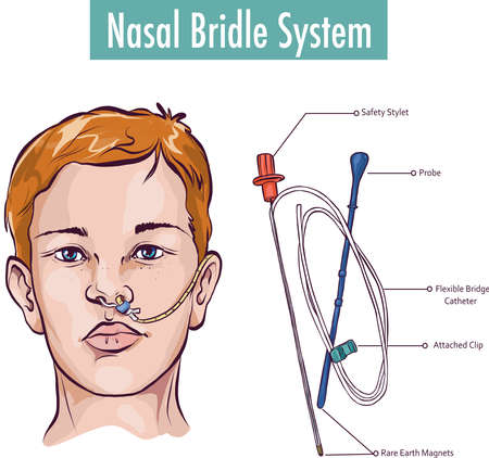 A nasal bridle attaching a nasogastric tube to the nasal septum to prevent accidental pullout Ilustrace