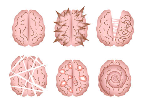 Mental disorder vector illustrations isolated. Abstract depictions of human brain altered by various mental illnesses, psychiatric disorders, neurological disorders or diseases. 矢量图像