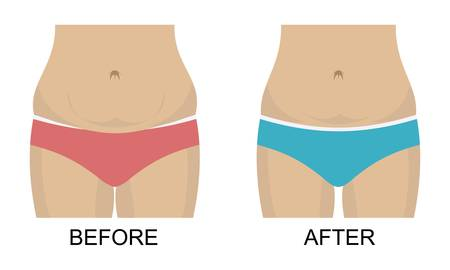before after concept, weight loss, waist and belly Ilustração