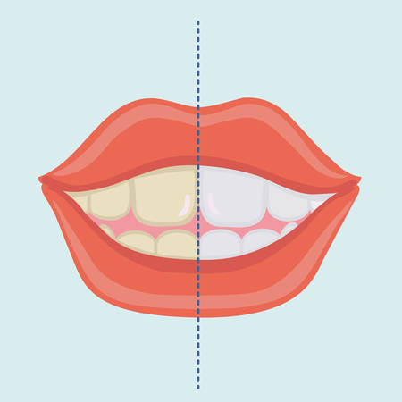Vector cartoon illustration of Smiling Mouth with Cleaning Teeth, Before and After Bleaching treatment