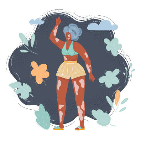 Cartoon illustration of young happy woman with vitiligo skin, pigmentation on arms and legs wearing swimsuit on dark background. Ilustração
