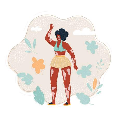 Vector illustration of vitiligo girl