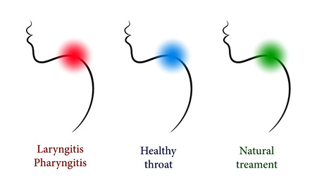 tonsillitis: Otorhinolaryngology set with healthy and sore throat Illustration