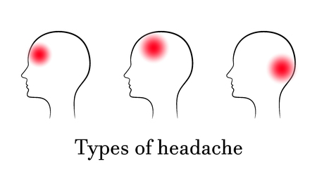 Types of headache, contour medical concept Illustration