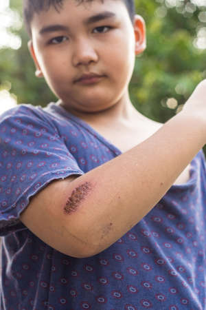 Wounds caused by falling on elbow, the boy look elbow