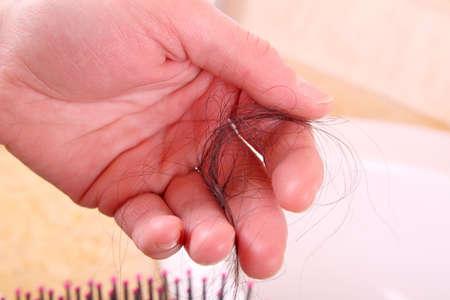 alopecia: woman with hair loss