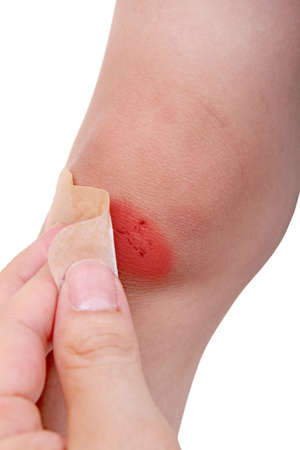 removing a band aid off a scratched knee photo