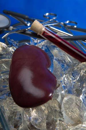 transplantation: Nieren f�r die Transplantation vorbereitet