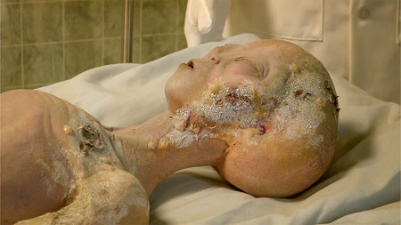 ufology: Alien body on gurney being examined after its spaceship crashed near Roswell. A display at the International UFO Museum and Research Center in Rowsell, New Mexico Editorial