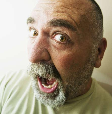 homme chauve: Protrait de crier un homme chauve avec une barbe.