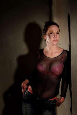 hoer: In de HAL met bruise op haar Wang prostitute