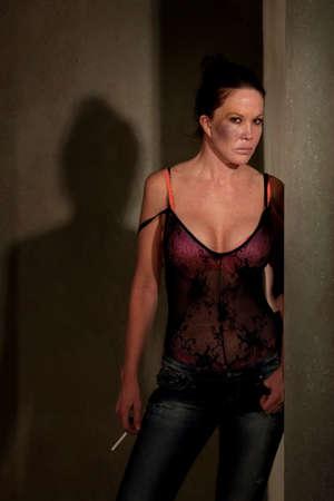 hoer: Prostituee in de hal met blauwe plekken op haar wang Stockfoto