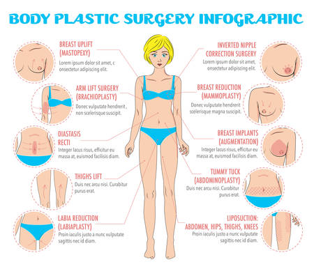 beautiful breasts: Body plastic surgery infographics for posters, brochures and web resources. Breast uplift, reduction and implants, thighs lift, liposuction, tummy tuck, arm lift surgery, labia reduction, diastasis surgery. Beauty care concept. Vector elements and icons Illustration
