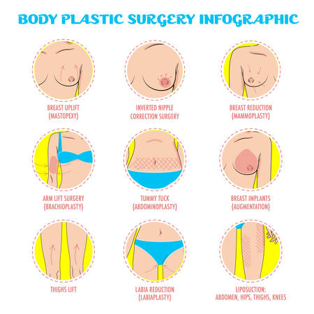 Cosmetic plastic surgery vector icons for infographic, posters and brochures. Rhinoplasty, face lifting, blepharoplasty, eye and lip surgery, hair transplant, cheek implants. Beauty care concept. Ilustracja