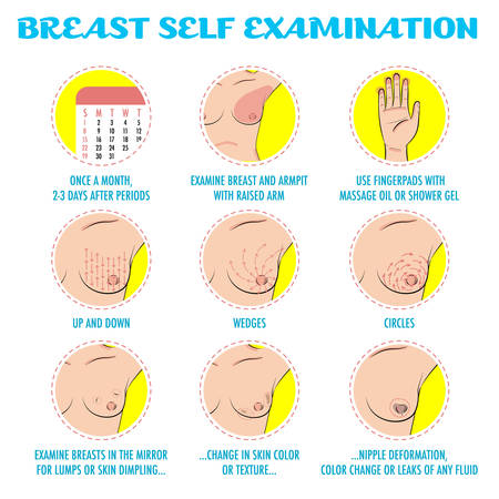 Breast self exam, breast cancer monthly examination infographics. Icon set. Symptoms of breast cancer or tumor. Cute colored cartoon style. Vector for flyers, brochures, web resources, health centers. Stock Illustratie