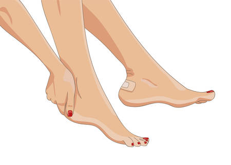 female legs: Bare female legs with blister plaster applied on one heel. Side view. Medical strip bandage covering heel callus or wound. Tight footwear result. Vector illustration. Illustration