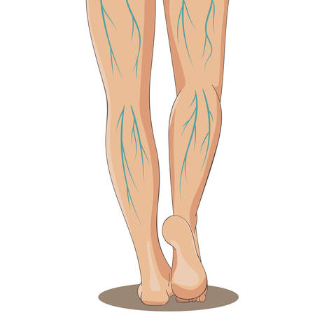female legs: Varicosity. Female legs, back view, with varicose veins. Vector illustration for medicine or cosmetology infographic and design. Cartoon style.