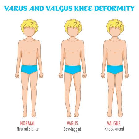 외반 / 내반 무릎, 다리 질환 / 변형 인포 그래픽. 보통 다리 자세, 외반, 내반와 소년을 표시합니다. 제누 varum, 외반 슬 : 다리의 모양입니다. 다리 변형 및 보잉. 벡터입니다. 스톡 콘텐츠 - 61116587
