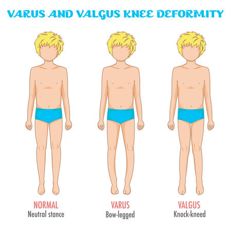 Valgus/varus knee, legs disease/deformation infographic. Shows the boy with normal leg stance, valgus, varus. Shape of the legs: Genu varum, genu valgum. Legs deformity and bowing. Vector isolated. Stock Illustratie