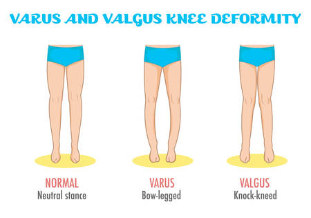 Valgus/varus knee, legs disease/deformation infographic. Shows normal leg stance, valgus, varus. Shape of the legs: Genu varum, genu valgum. Legs deformity and bowing. Vector isolated.
