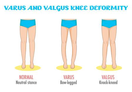 stance: Valgusvarus knee, legs diseasedeformation infographic. Shows normal leg stance, valgus, varus. Shape of the legs: Genu varum, genu valgum. Legs deformity and bowing. Vector isolated.
