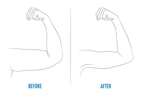 Female biceps before and after sport. Arms showing progress after fitness. Bent arm with bat wing vs well toned arm. Contour vector illustration for beauty, cosmetology, sport or medicine infographic.