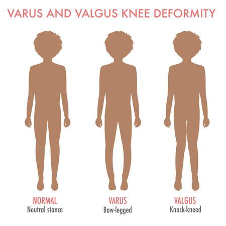 외반, 내반 수염, 다리 질환, 변형 인포 그래픽 정상 다리 자세, valgus, 내 렸을와 소년 실루엣. 다리의 모양 : genu varum, genu valgum. 다리 기형과 굴곡. 벡터  일러스트