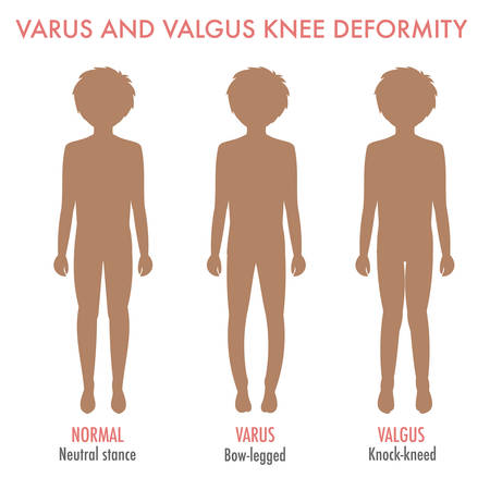 bowing: Valgus, varus knee, legs disease, deformation infographic. Boy silhouette with normal leg stance, valgus, varus. Shape of the legs: genu varum, genu valgum. Legs deformity and bowing. Vector isolated.