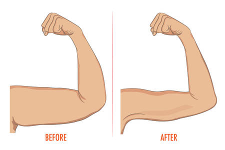 Female before and after sport. Arms showing progress after fitness. Bent arm with bat wing vs well toned arm. illustration for beauty, sport or medicine infographic.