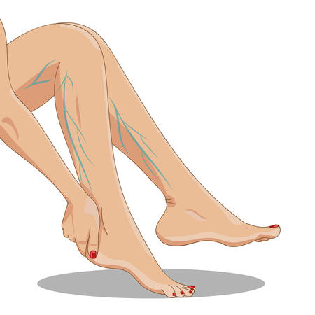 Varicosity. Tired female legs sitting, side view, with varicose veins, one hand above the ankle. Vector illustration for medicine or cosmetology infographic and design. Cartoon style.