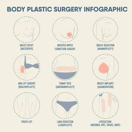 포스터 및 웹을위한 신체 성형 외과. 유방 향상, 감소, 임플란트, 허벅지 리프트, 지방 흡입, 배가 턱, 팔 리프트 수술, diastasis. 뷰티 케어 컨셉 아이콘
