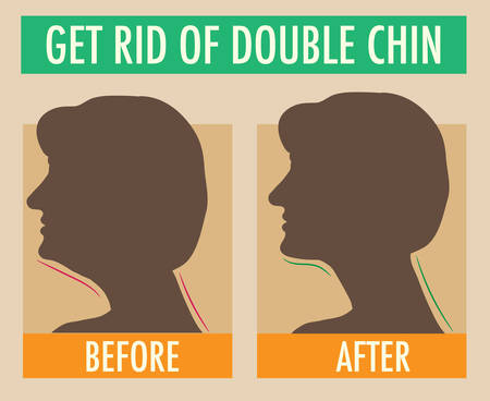 Reduce double chin. Get rid of face and neck fat concept illustration for beauty or plastic surgery infographic, before and after. Silhouettes of female head, side view. Fat and slim jaw line.