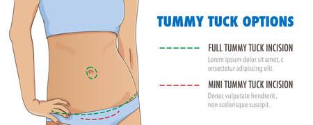 Tummy Tuck, Abdominoplastik Infografik Banner für Web, Plakate und Broschüren. Abdominal oder Fettabsaugung plastische Chirurgie. Nahaufnahme des dünnen weiblichen Bauch. Vektor-Illustration.