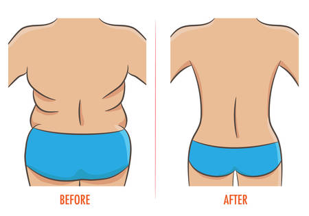 Fat and slim figures, before and after weight loss isolated vector illustration Ilustração
