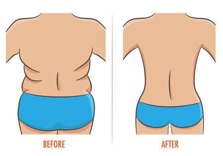 Grasa y las figuras delgadas, antes y después de la pérdida de peso ilustración vectorial aislado Foto de archivo - 76517487