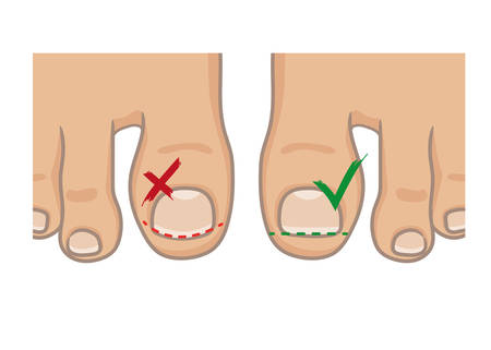 How to cut toenails, right and wrong concept. How to avoide ingrown nail. Female or male foot sole, barefoot, top view. Vector illustration, hand drawn cartoon style isolated on white.