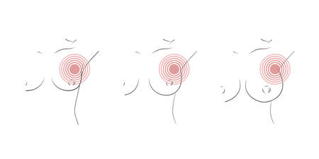 Breast pain icon set. Part of woman chest with arm raised, pain marker located in armpit lymph node, showing possible tumour or cancer. Three different size of boobs. Vector illustration, line style. Иллюстрация