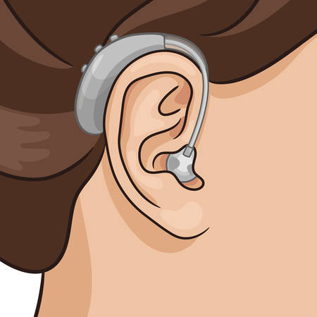 Hearing aid behind the ear, electronic device, BTE type. Hearing loss vector illustration, realistic style.