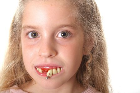 pretty little girl with ugly teeth (copy space right)