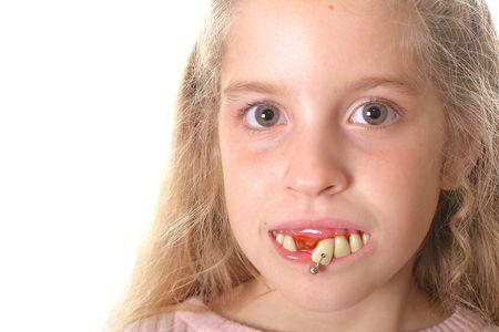 Niña bonita con dientes feos (copia espacio la izquierda)  Foto de archivo - 2017204