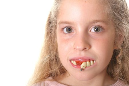 pretty little girl with ugly teeth (copy space left)