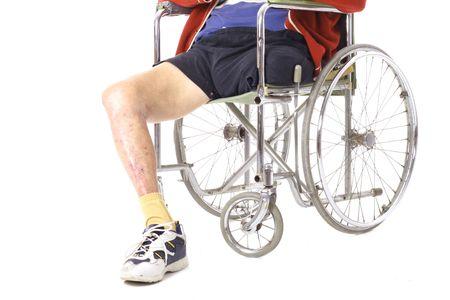 amputation: after surgery leg amputation