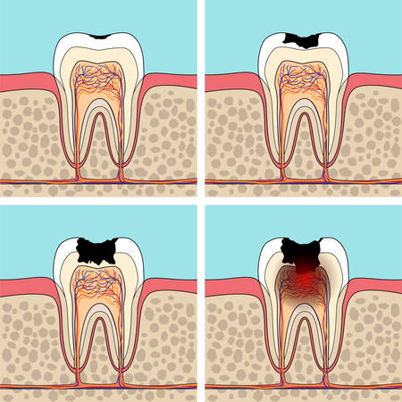 cross section: Dental caries stages. Cross section tooth anatomy and damage.